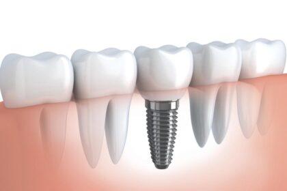 Ile kosztuje implant zęba?
